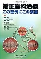 矯正歯科治療 この症例にこの装置
