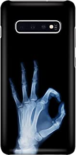 Radiologist Hand Bone Ok Phone Case for Samsung Galaxy S10e - Silicone Case with 3D Printed Design, Slim Fit, Anti Scratch, Shock Proof, IMD Soft TPU Cover Case