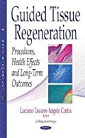 Guided Tissue Regeneration: Procedures, Health Effects and Long-term Outcomes (Cell Biology Research Progress)