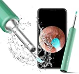 DJROLL Ear Wax Removal, Earwax Remover Tool, Ear Camera, Ear Scope with Ear Wax Cleaner Tool Compatible with iPhone, iPad, Android Smart Phones (Blue)
