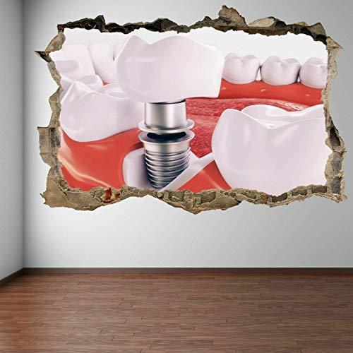 ioljk Implante de Dientes dentales 3D Arte de la Pared Etiqueta Mural Calcomanía Cirugía Decoración de la Oficina