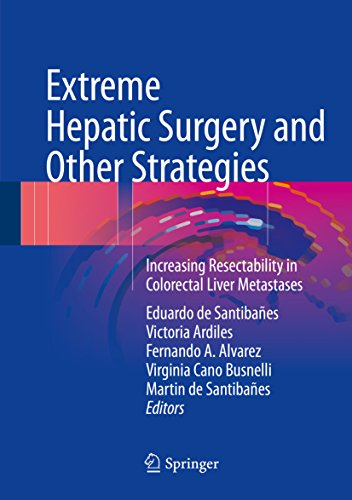 Extreme Hepatic Surgery and Other Strategies: Increasing Resectability in Colorectal Liver Metastases (English Edition)