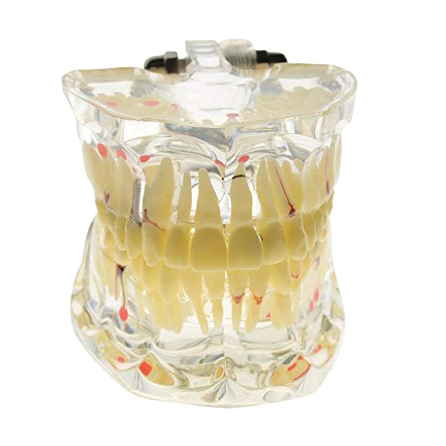 からかうすることになっている葉を拾うHEALIFTY 脱着可能な口腔モデル着脱可能な歯科インプラント歯モデル歯ティーチングモデル