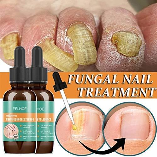 Yeyll Tratamiento de hongos de uñas - Mejor juego de reparación de uñas, detener el crecimiento de hongos, solución eficaz para el cuidado de la salud de uñas y uñas, arreglar y renovar