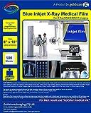 "Inkjet Medical Blue X ray Film PRINTABLE WITH DESKTOP INKJET PRINTER Printside identification Notch SIZE : 203 MM X 254 MM (8"" x 10"") 100 sheets / Round Corner / Print side Notch"