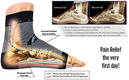 OrthoSleeve FS6 Compression Foot Sleeve One Pair for Plantar Fasciitis Heel Pain Achilles Tendonitis and Swelling