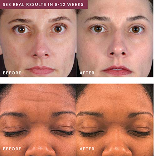PMD Personal Microderm Pro Before and After
