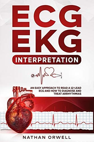 ECG EKG Interpretation An Easy Approach to Read a 12 Lead ECG and How to Diagnose and Treat product image