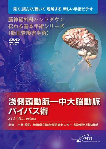 浅側頭動脈—中大脳動脈バイパス術(DVD) (脳神経外科ハンドダウン 伝わる基本手術シリーズ〈脳血管障害手術〉)