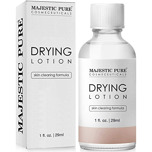 Majestic Pure Acne Drying Lotion, Acne and Pimples...