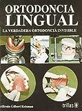 Ortodoncia Lingual/ Lingual Orthodontics: La Verdadera Ortodoncia Invisible/ the True Invisible Orthodontics