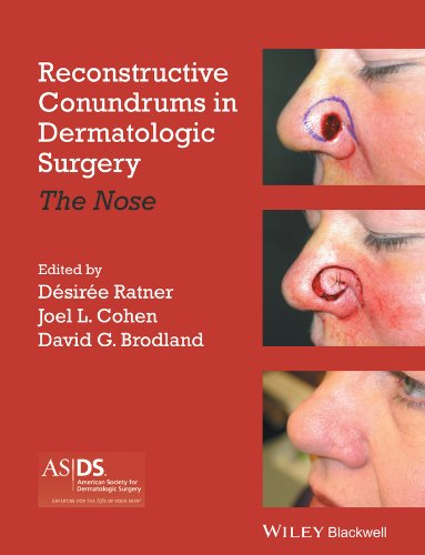 Reconstructive Conundrums in Dermatologic Surgery: The Nose