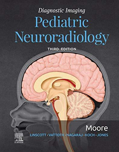 Diagnostic Imaging: Pediatric Neuroradiology E-Book (English Edition)