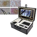 【𝐏𝐫𝐨𝐦𝐨𝐜𝐢ó𝐧 𝐝𝐞 𝐒𝐞𝐦𝐚𝐧𝐚 𝐒𝐚𝐧𝐭𝐚】Analizador del cuero cabelludo, detector de piel facial del folículo piloso, máquina de detección de microscopio profesional 50X 200X para uso en el sal