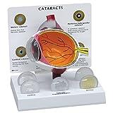 Anatomia interna dell'orecchio Modello di occhio ingrandito Cinque cristallini intercambiabili