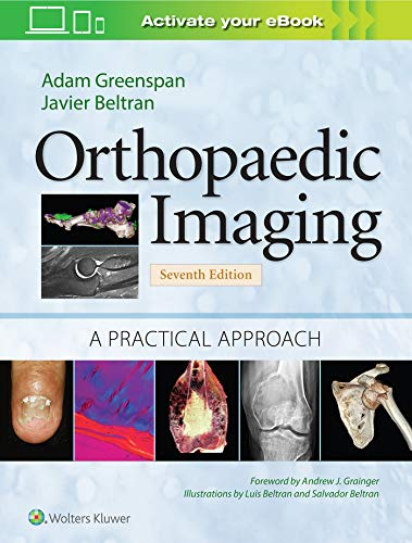 Compare Textbook Prices for Orthopaedic Imaging: A Practical Approach Orthopedic Imaging a Practical Approach Seventh Edition ISBN 9781975136475 by Greenspan M.D.  FACR, Adam,Beltran, Javier