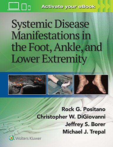 Compare Textbook Prices for Systemic Disease Manifestations in the Foot, Ankle, and Lower Extremity First Edition ISBN 9781451192643 by Positano DPM  MSc  MPH, Rock G.,Borer, Jeffrey,DiGiovanni MD, Christopher,Trepal MD, Michael