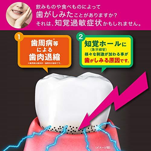【Amazon.co.jp限定】GUM(ガム)[医薬部外品]プロケアハイパーセンシティブハミガキ知覚過敏ケア歯周病予防高濃度フッ素1450ppm配合リフレッシュシトラス香味90g+おまけ
