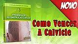 Programa de Reconstrução Capilar: A SOLUÇÃO DEFINITIVA DA CALVICIE (Portuguese Edition)