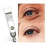 TSSPLUS Crocodile Anti-Aging Wrinkles Eye Cream Hyaluronic Acid Gel Whitening Moisturizing Remove Dark Circles Puffiness