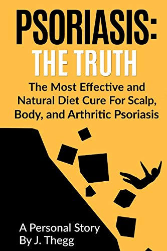 Psoriasis: The Truth: The Most Effective and Natural Diet Cure for Scalp, Body, and Arthritic Psoriasis (Psoriasis treatment psoriasis shampoo psoriasis cream psoriasis lotion, Band 1)