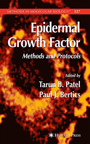 Epidermal Growth Factor: Methods and Protocols (Methods in Molecular Biology (327), Band 327)