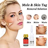 Mole Skin Tag Removal Solution Painless Mole Skin Dark Spot Removal Face Wart Tag Freckle Skin Care (3ml)
