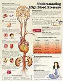 Understanding High Blood Pressure