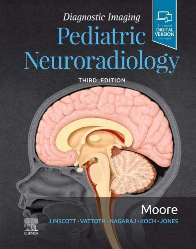 Compare Textbook Prices for Diagnostic Imaging: Pediatric Neuroradiology 3 Edition ISBN 9780323680318 by Moore MD, Kevin R.
