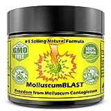 Molluscum Contagiosum Treatment Cream Fast Gentle Painless Plant-Based Formulation Tea Tree Oil Body Wash Plant-Based Formulation for Kids and Adults