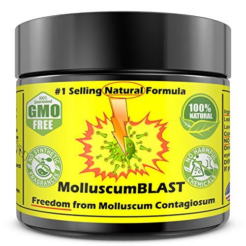 Molluscum Contagiosum Treatment Cream Kids Adults (15 essential oils) Vanishing Stick Natural Contagium Quick Control Stop #1Selling Large 60 ml 100% Natural Quick Relief