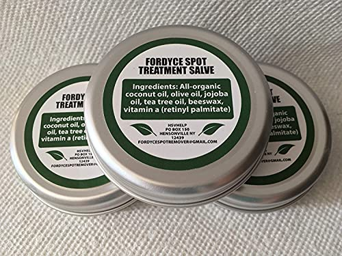 Fordyce Spot Remover - Spots Removal Cream Treatment - Reduces size...