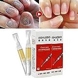 Shopystore Nail Treatment Pen Onychomycosis Paronychia Anti Fungal Infection