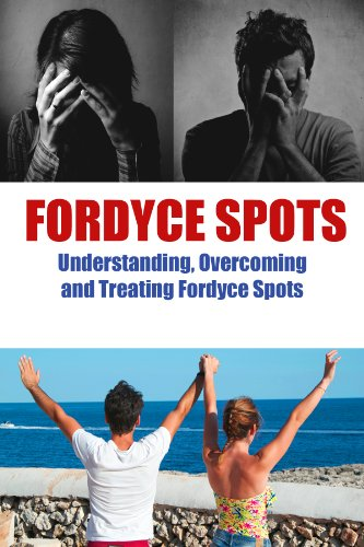 Fordyce Spots:Understanding, Overcoming, and Treating Fordyce Spots (English Edition)