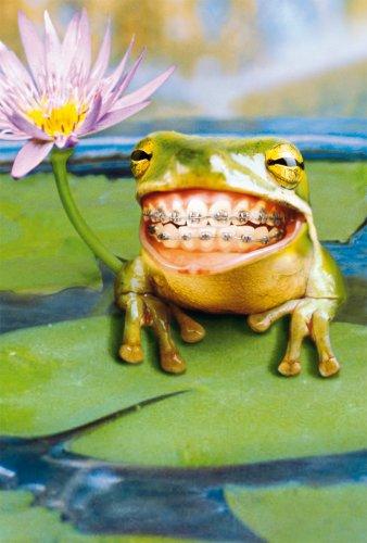 Avanti Karten - Humorkarte Geburtstagskarte Zahnspangen Frosch 94-1015