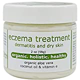 Eczema Cream for Dermatitis, Dry Skin with Organic Aloe & Vitamin E, 2oz