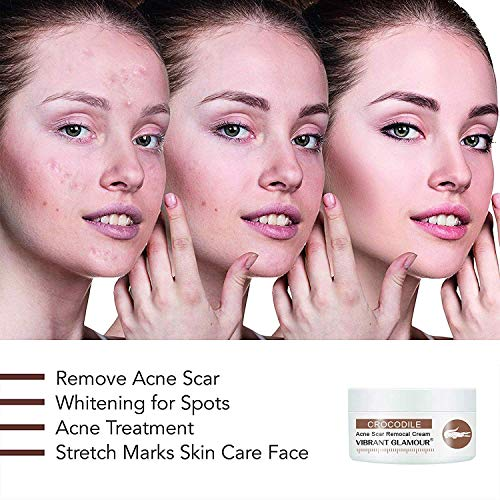Revitol Scar Removal Cream Effective With All Skin Types And