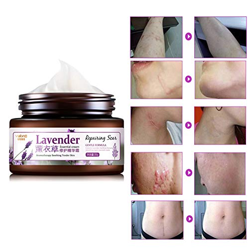 Best Scar Removal Cream, Jojoba Seed Oil & Organic Natural Herbal Formula - Advanced Treatment for Face & Body, Old & New Scars from Cuts, Stretch Marks - Scar Repair Marks Scar Remover (A)