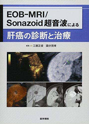 EOB-MRI/Sonazoid 超音波による肝癌の診断と治療の詳細を見る