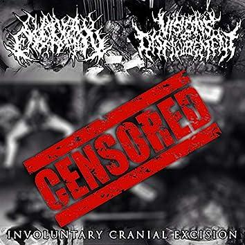 Involuntary Cranial Excision