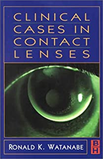 Clinical Case in Contact Lenses