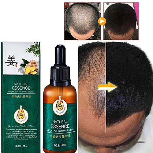 Hair Growth Serum,Hair Growth Spray,Anti Hair Loss,Promote Hair Growth,Preventing Hair Loss and Hair Grwoth Spray Hair Care Hair,Hair Loss Treatment for Men & Women