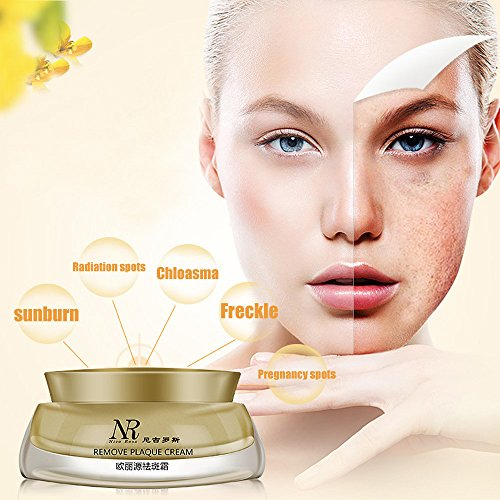 BB Cream, Hometom NR Face Skin Care Chloasma Freckle Pregnancy Acne Spot Remove Cream Whitening (Yellow)