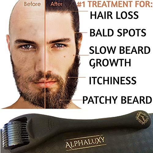 Beard Growth Kit - Derma Roller for Beard Growth 540 Needles + Facial Hair Growth Activator Serum   Microneedle Beard Roller for Men & Organic Beard Oil - Free Grow Beard Guide + Full Warranty