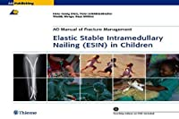 Elastic Stable Intramedullary Nailing Esin in Children (Ao-publishing)