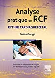 Analyse pratique du RCF - Rythme cardiaque foetal