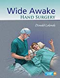 Wide Awake Hand Surgery - Donald LaLonde