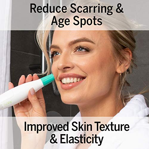 Silk'n Revit - Blackhead Remover Vacuum - Microdermabrasion Machine - Cleansing Exfoliating Face Scrub Pore Vacuum