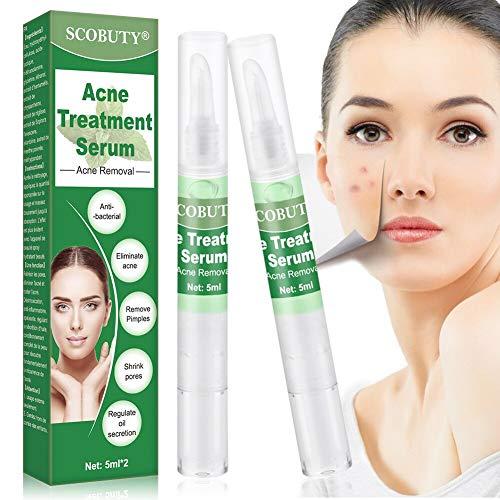 Akne Serum,Anti Pickel Serum,Akne Behandlung Serum,Akne Pickel Entferner Serum Minze Stift Gesunde Ölkontrolle Balance Schrumpfende Poren Pickel Entfernen Repair Skin wiederherstellen