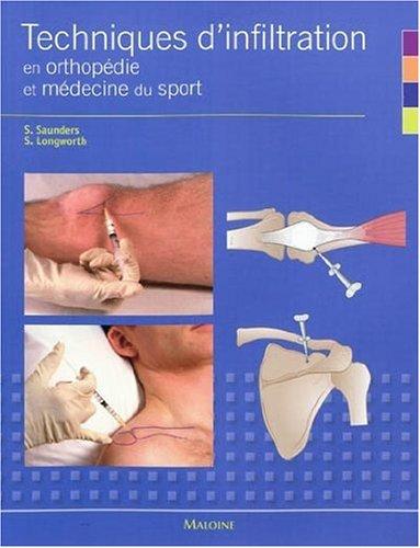 Techniques d'infiltration en orthopédie et médecine du sport
